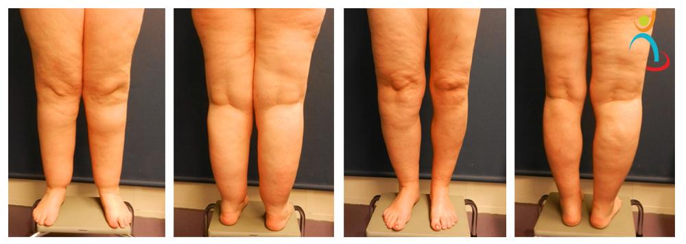Vergoeding liposuctie bij lipoedeem