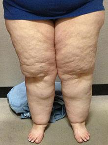 Ophoping van lipoedeemvet in de benen van een 28-jarige vrouw. De voeten zijn niet aangedaan. (Wiki)